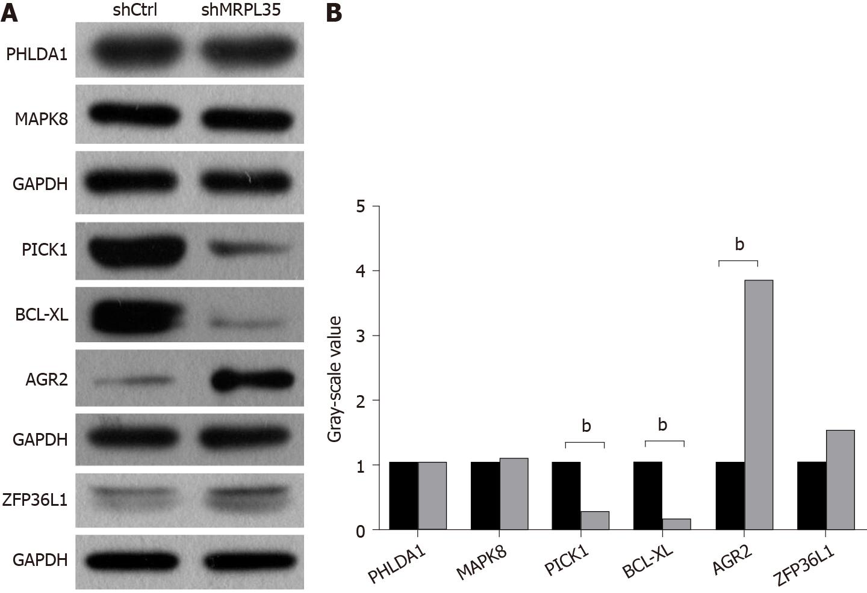 Depletion of CAPZA1 expression promotes gastric cancer