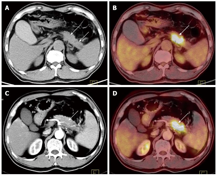 Cross-modality PET/CT and contrast-enhanced CT imaging for ...