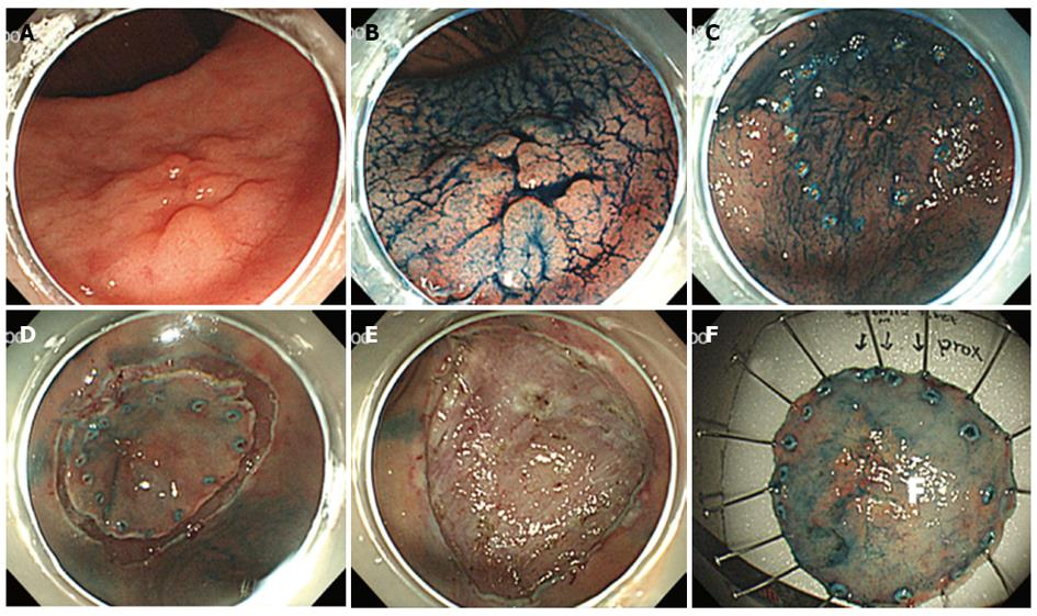Gastric cancer esd