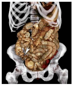 Advances in alimentary tract imaging