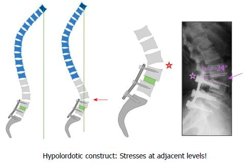 Current strategies for the restoration of adequate lordosis during