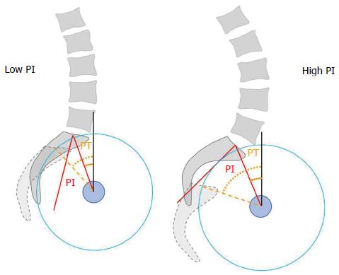 Current strategies for the restoration of adequate lordosis