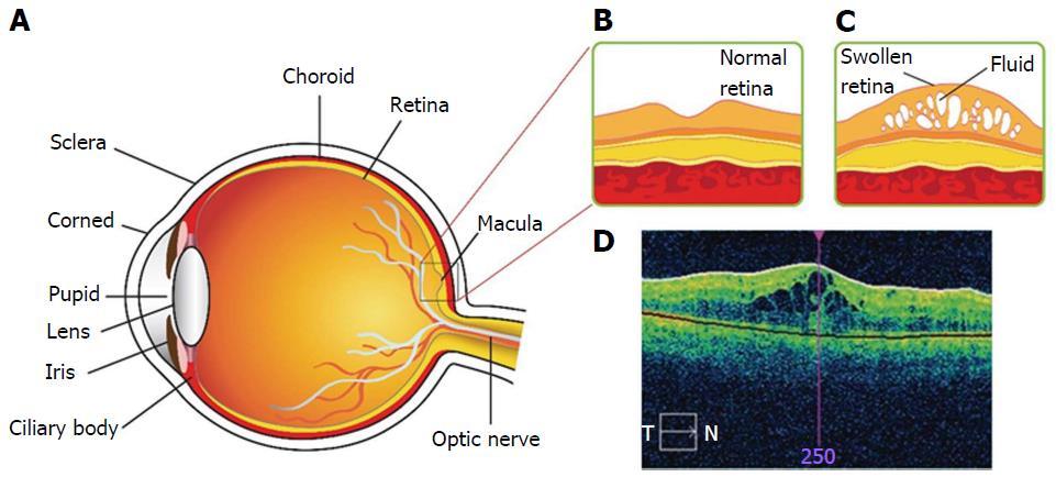 Novel strategies for the treatment of diabetic macular edema