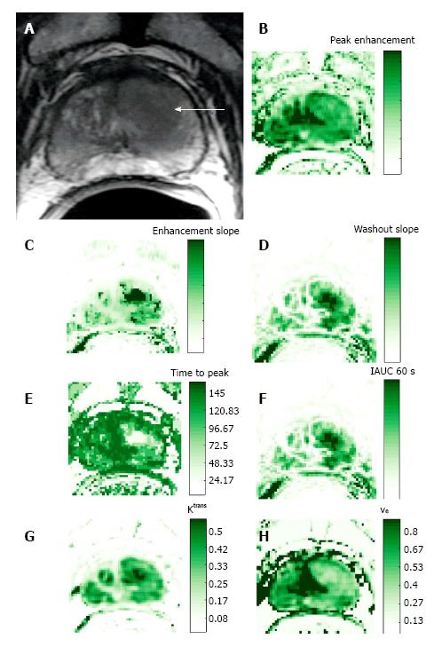 Dynamic contrast-enhanced magnetic resonance imaging of