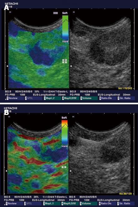 New Ultrasound Techniques For Lymph Node Evaluation