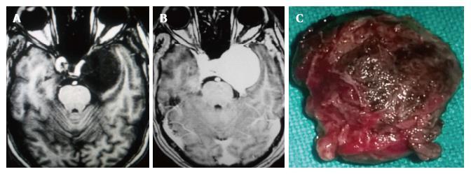 Clinical Radiological Pathological Correlation Of Cavernous Sinus