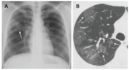 Imaging of community-acquired pneumonia: Roles of imaging ...