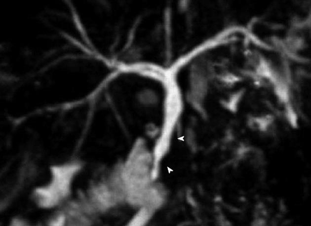 Portal hypertensive biliopathy: A single center experience