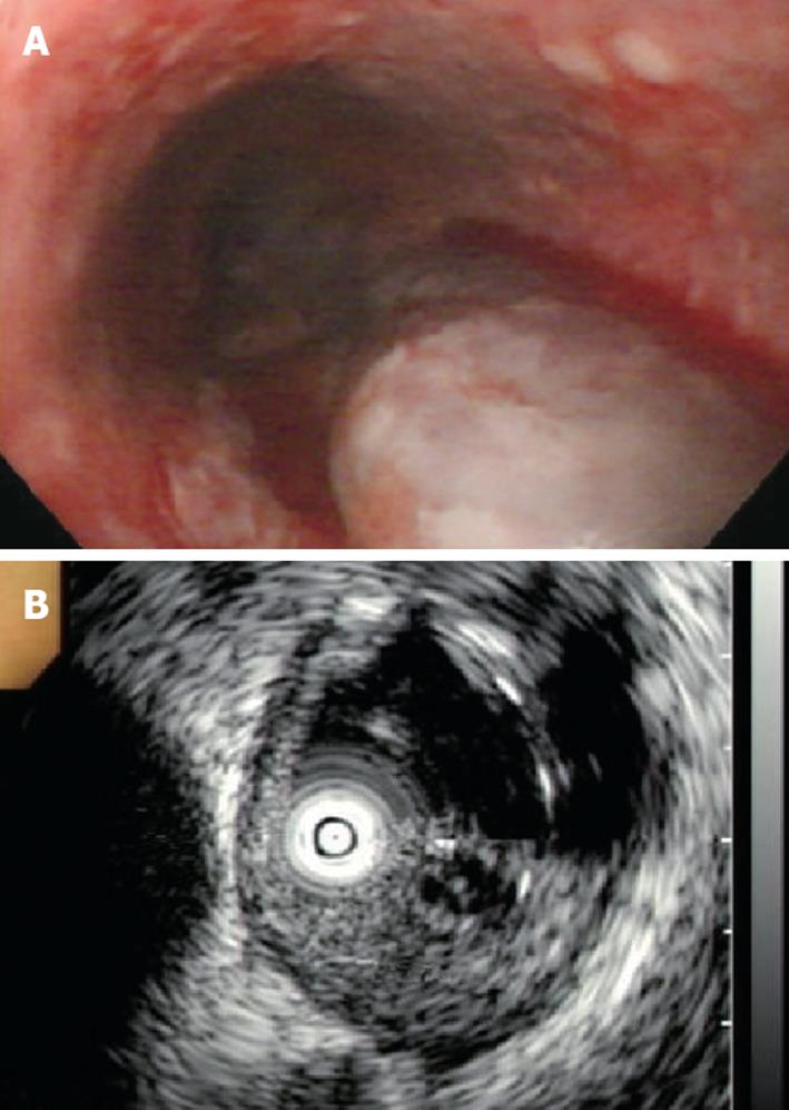 Achalasia combined with esophageal intramural hematoma: Case report