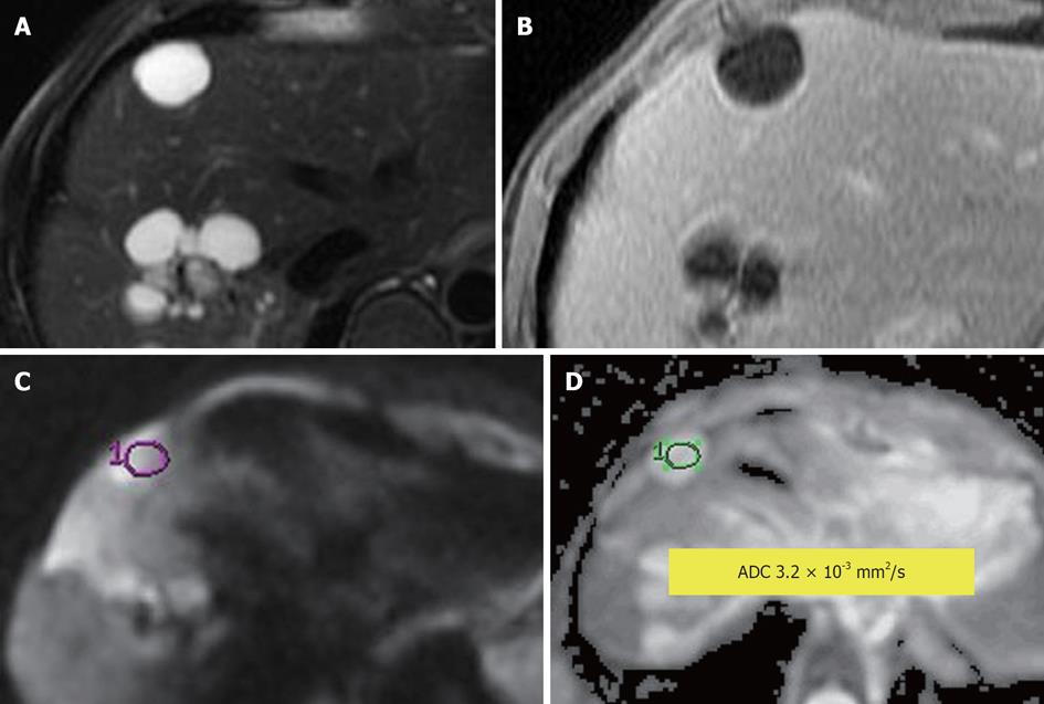 Figure 6 Simple Hepatic Cyst A Fat Suppressed T2 Weighted T2w Fast Spin Echo B Enhanced T1 Weighted Gra Nt Re Ed Echo C Diffusion Weighted