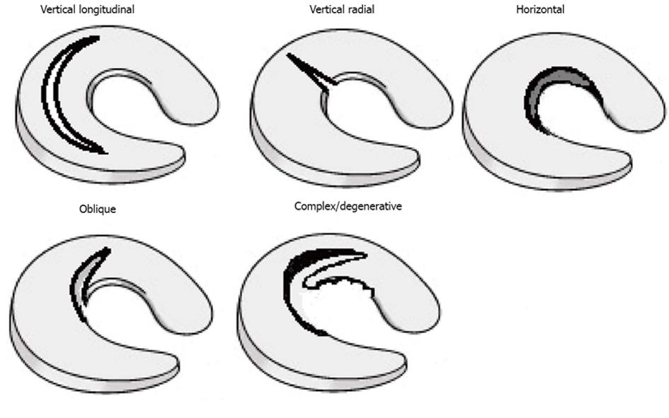 Treatment of meniscal tears: An evidence based approach