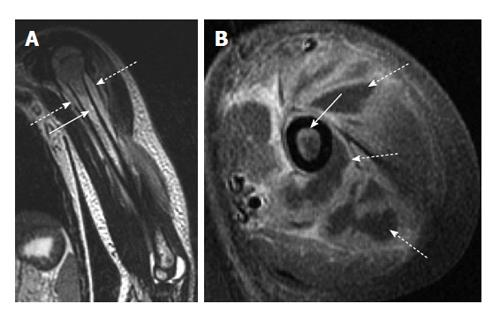 Role of MRI in the diagnosis and treatment of osteomyelitis in pediatric patients
