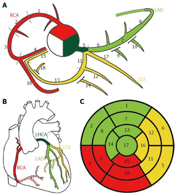 Coronary artery anomalies overview: The normal and the abnormal