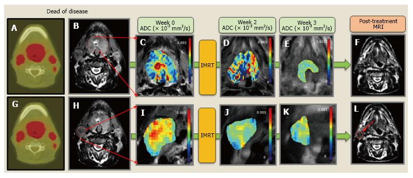 Multimodality functional imaging using DW-MRI and 18F-FDG