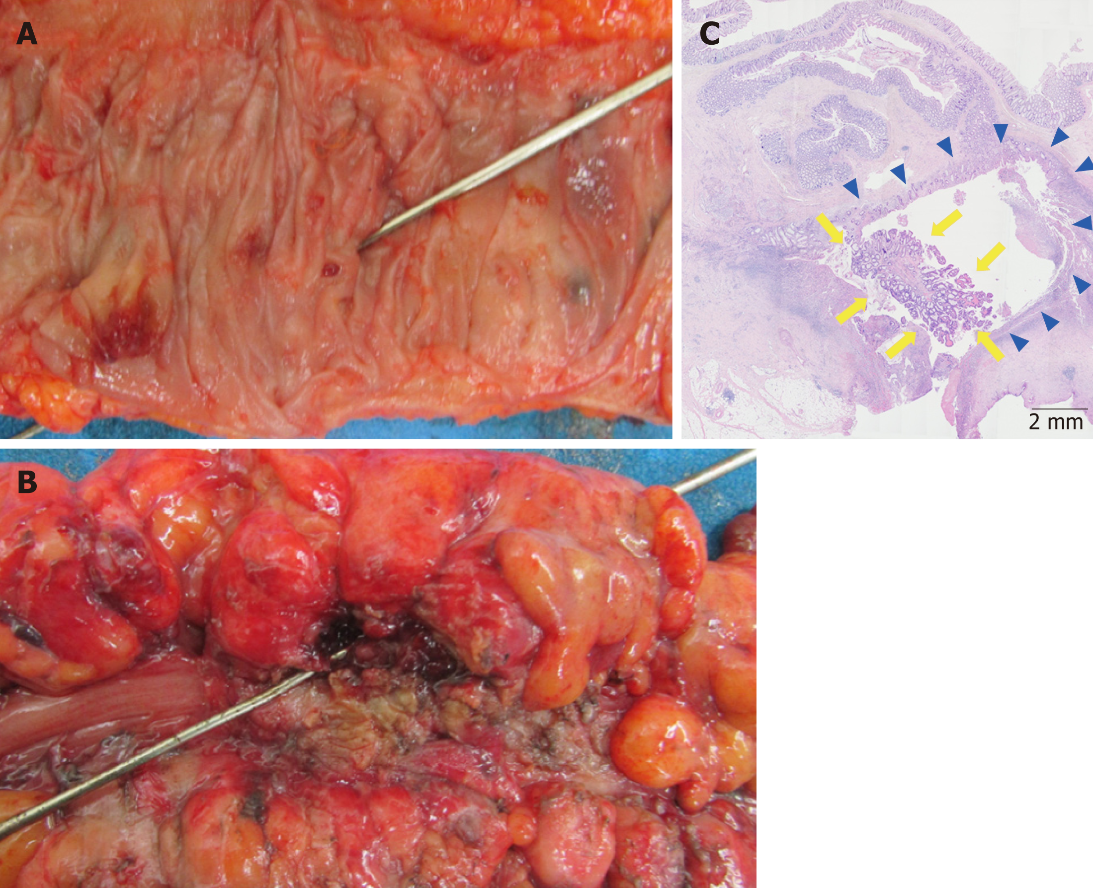 Colon Cancer Arising From Colonic Diverticulum A Case Report