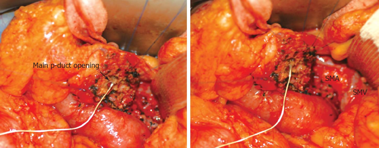 Experience of limited pancreatic head resection for ... Cancer Of Uncinate Process Of Pancreas Icd 10