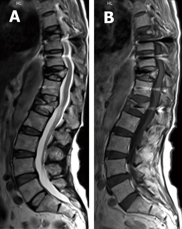 Spinal fusion-hardware construct: Basic concepts and imaging
