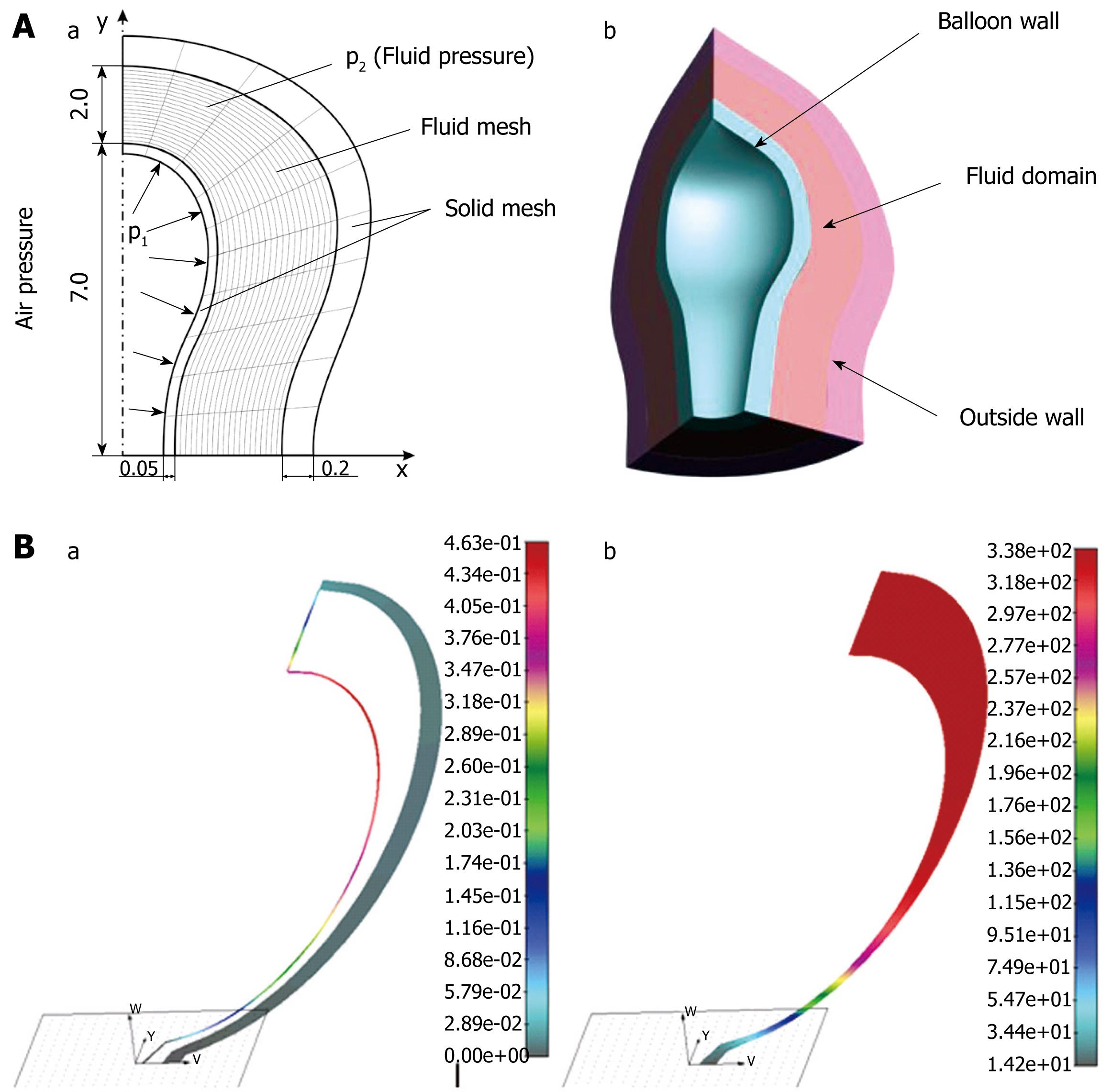 Computer simulation of flow and mixing at the duodenal stump after ...