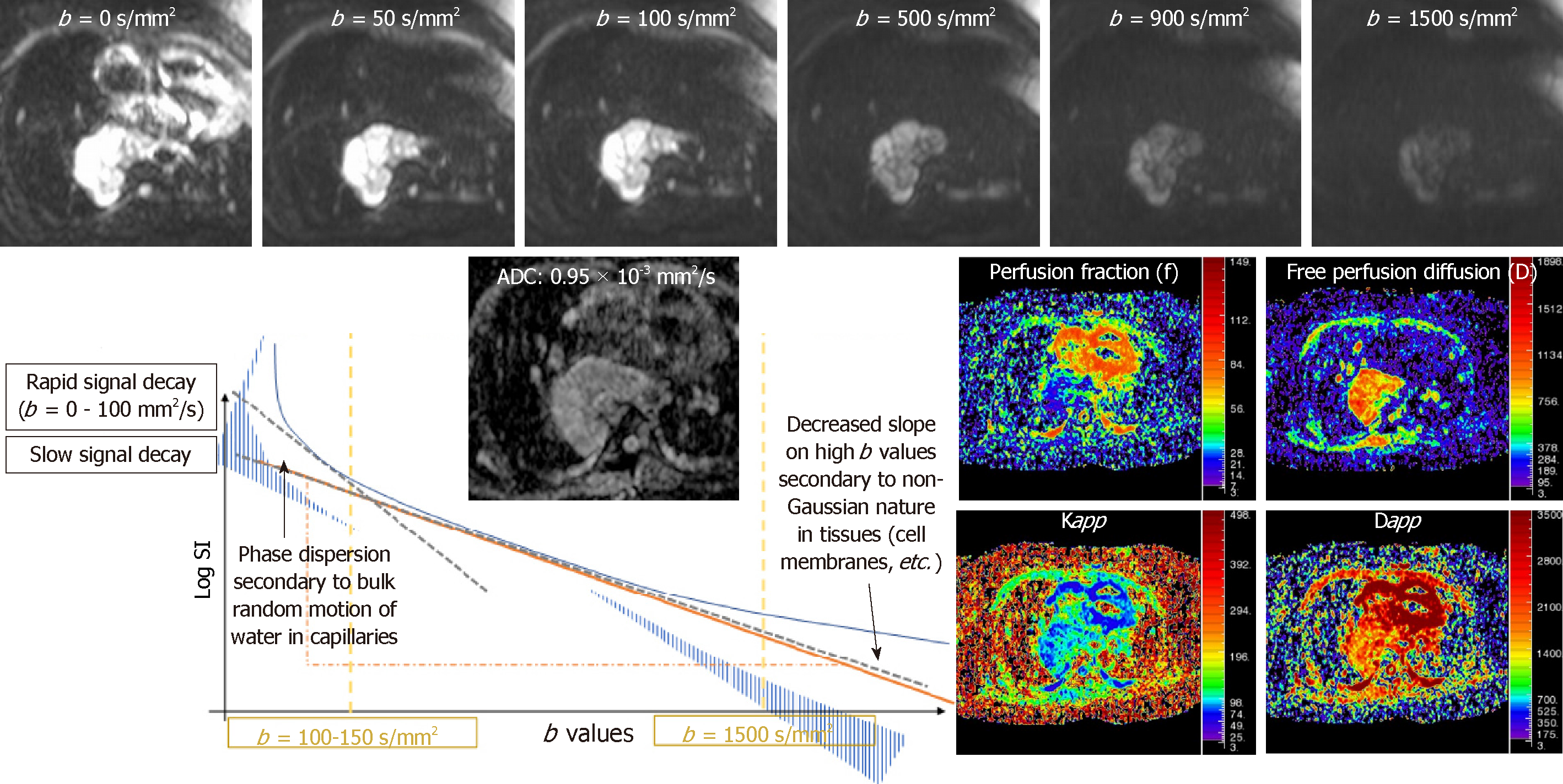 Role of advanced magnetic resonance imaging in the