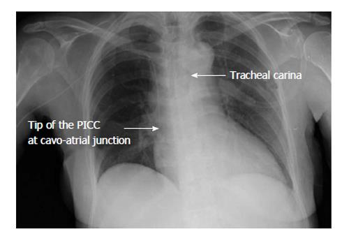 Focus on peripherally inserted central catheters in