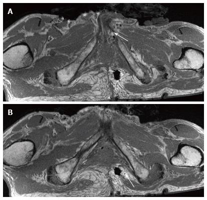 3T magnetic resonance neurography of pudendal nerve with cadaveric