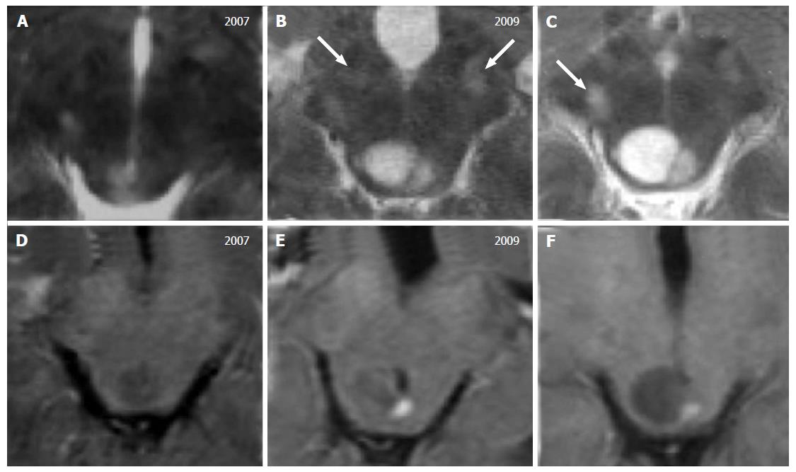 Magnetic resonance imaging differential diagnosis of for Cystic lesion with mural nodule