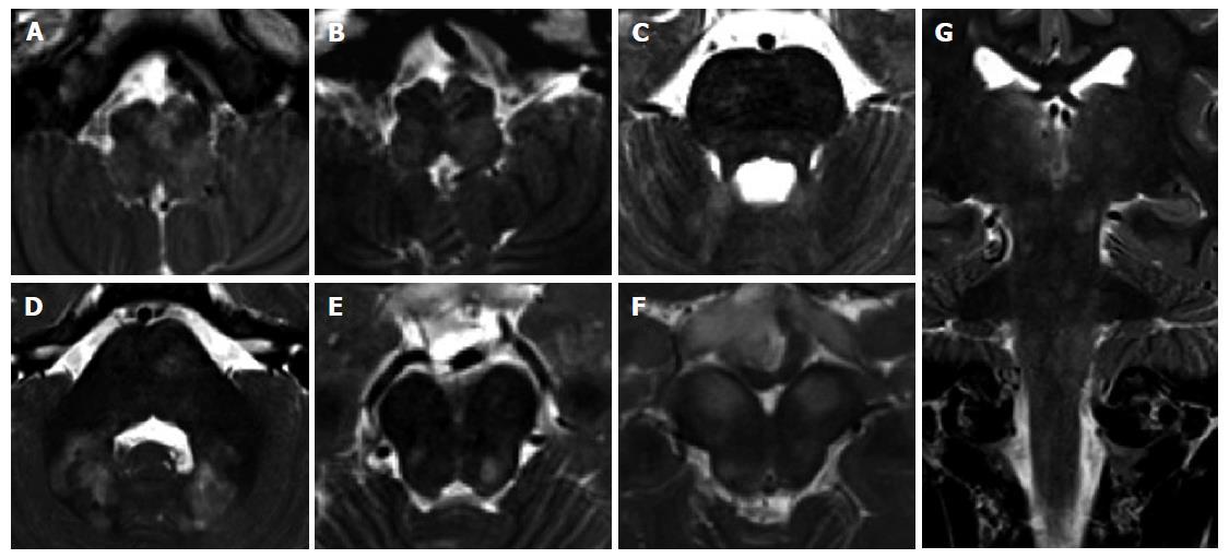 Magnetic resonance imaging differential diagnosis of brainstem ...
