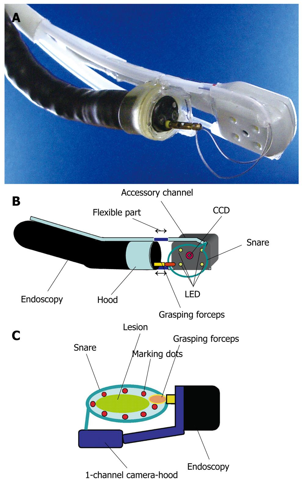 Endoscopy Suite: Endoscopic Mucosal Resection And Endoscopic Submucosal