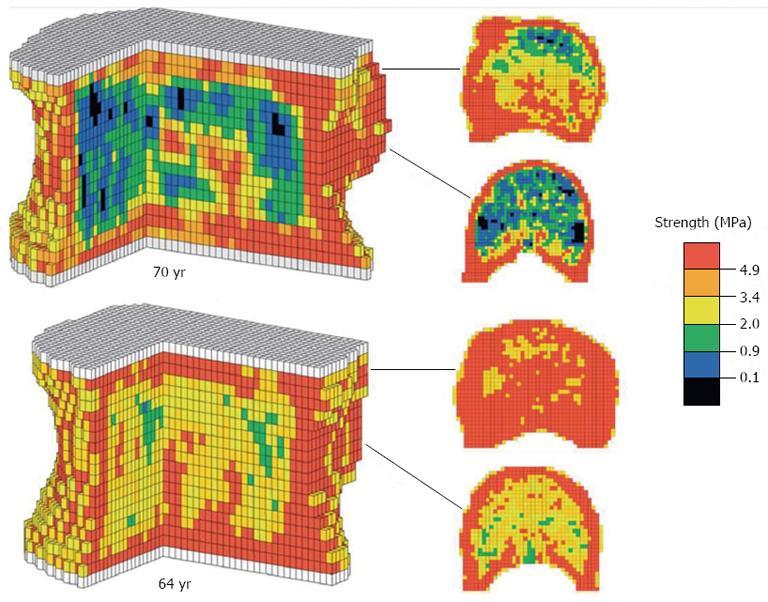 Methods Of Predicting Vertebral Body Fractures Of The Lumbar Spine