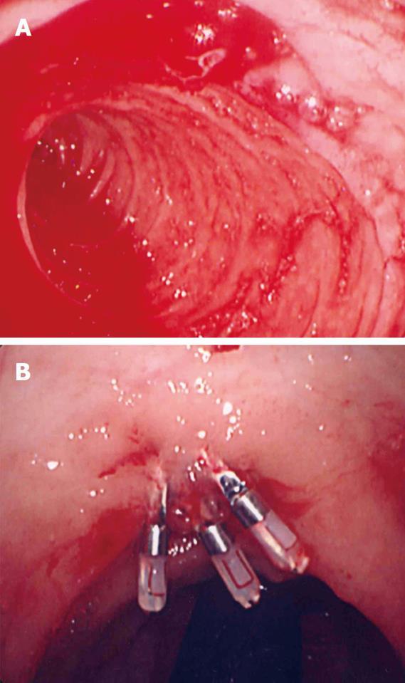 Endoscopic Hemostasis Techniques For Upper