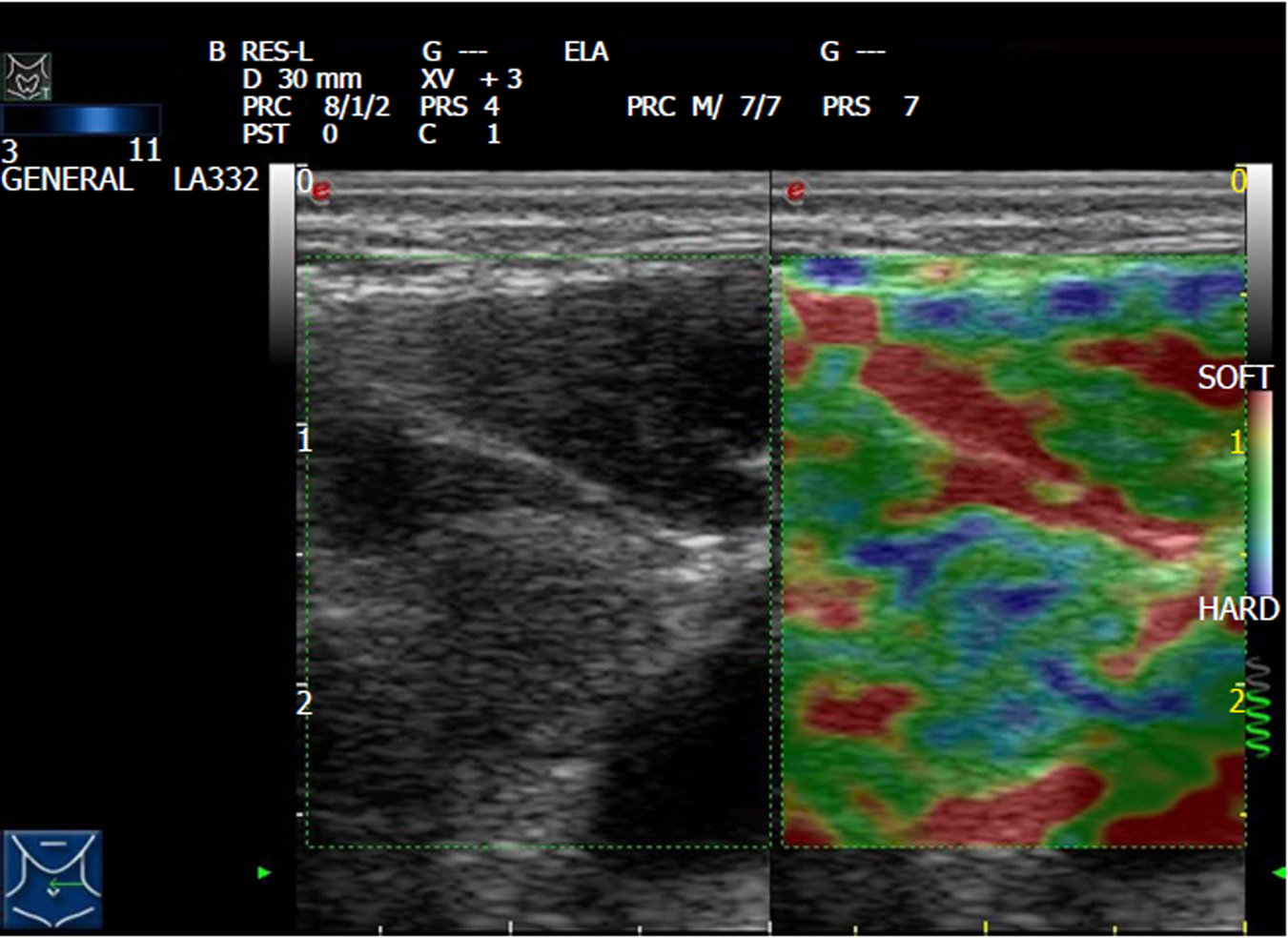 Value Of Contrast Enhanced Ultrasound Combined With Elastography