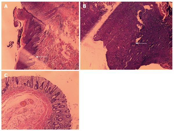 Experimental Porcine Model Of Complex Fistula In Ano