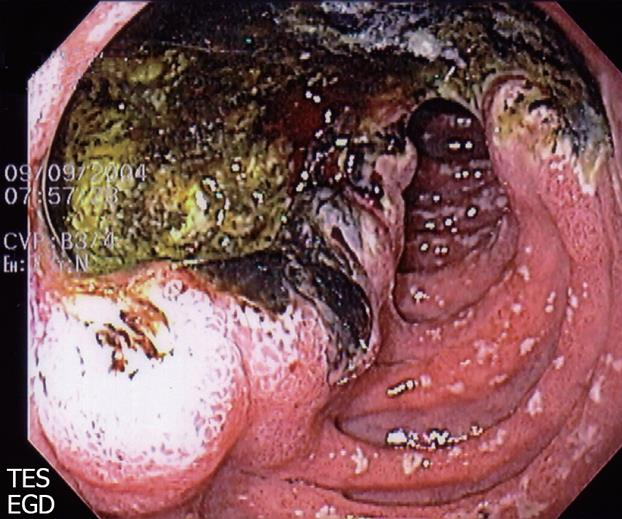 gastric and duodenal ulcers pdf