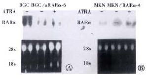 The effect pathway of retinoic acid through regulation of
