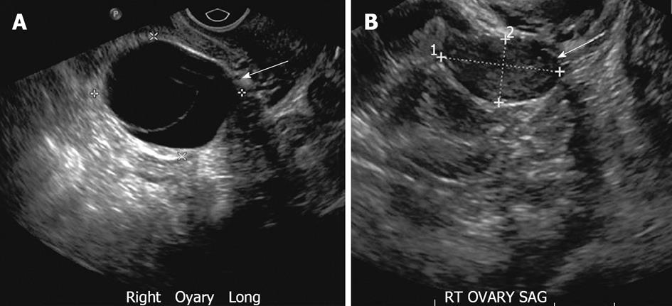 Multimodality imaging of ovarian cystic lesions review for Cystic lesion with mural nodule