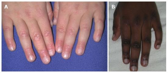 Review of the cutaneous manifestations of autoimmune