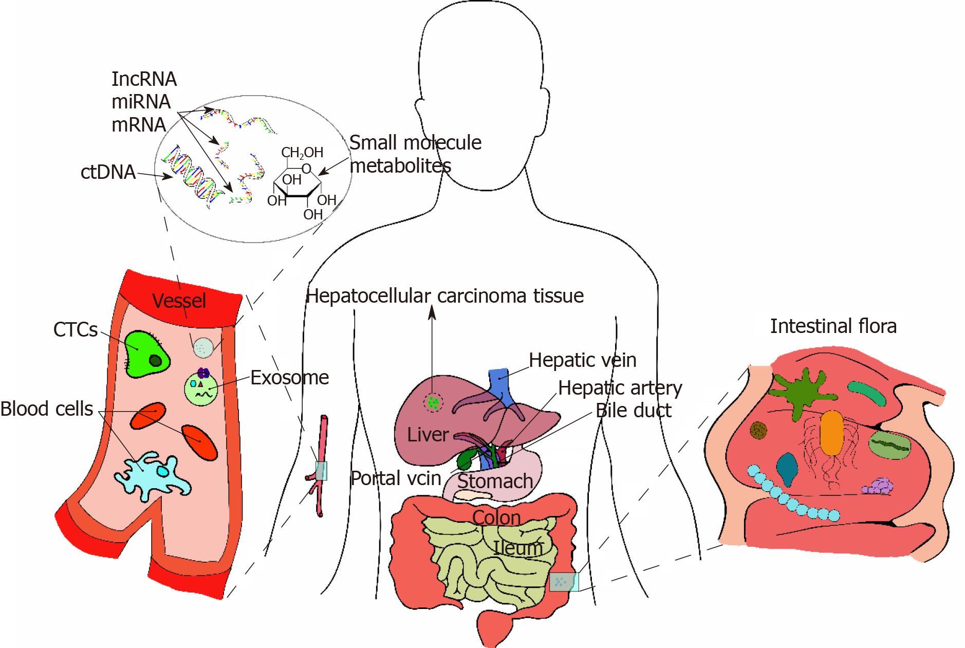 """Multiple """"Omics"""" data-based biomarker screening for"""
