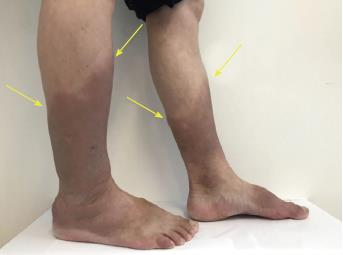 Intralesional and topical glucocorticoids for pretibial