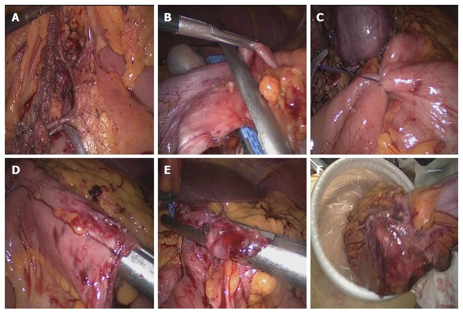 Short-term outcomes of overlapped delta-shaped anastomosis, an ...