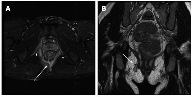 Inflammatory bowel disease imaging: Current practice and