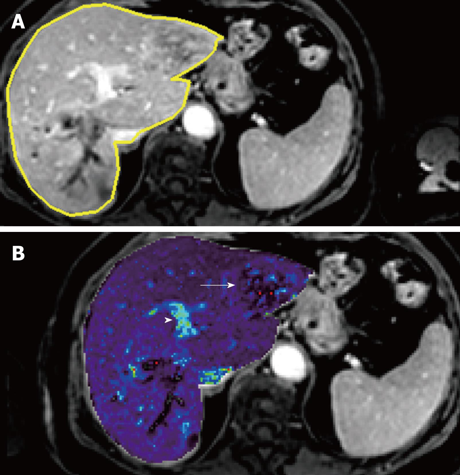 Magnetic resonance imaging of the liver: New imaging strategies for ...