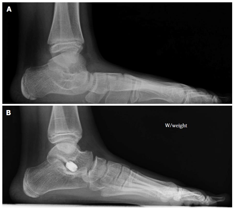 How To Approach The Pediatric Flatfoot
