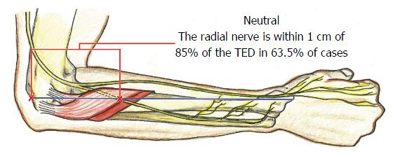 Posterior Interosseous Nerve Localization Within The Proximal