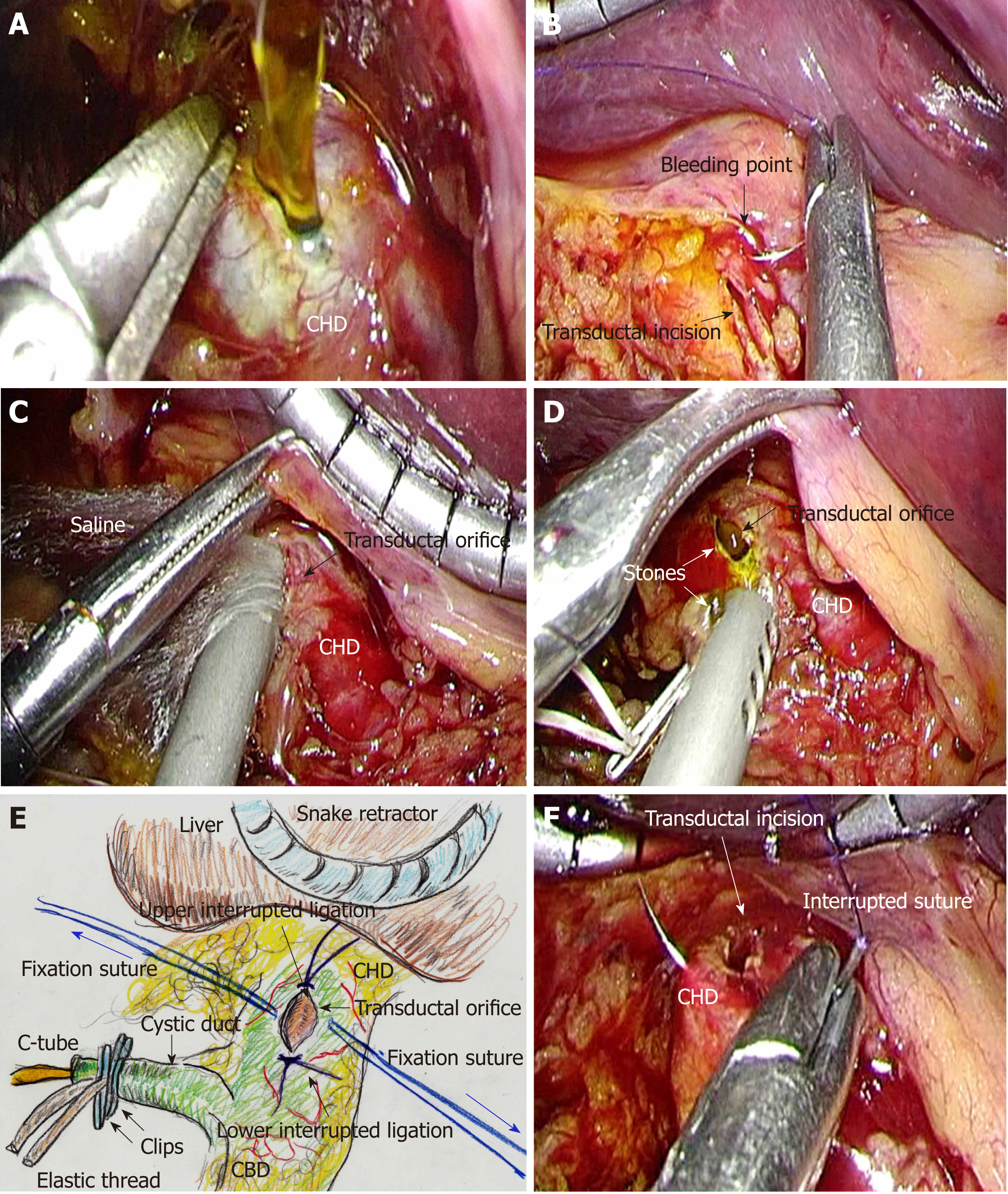 Complications in Laparoscopic Surgery: A Guide to Prevention and Management