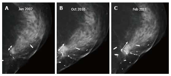 Imaging of the treated breast post breast conservation surgery