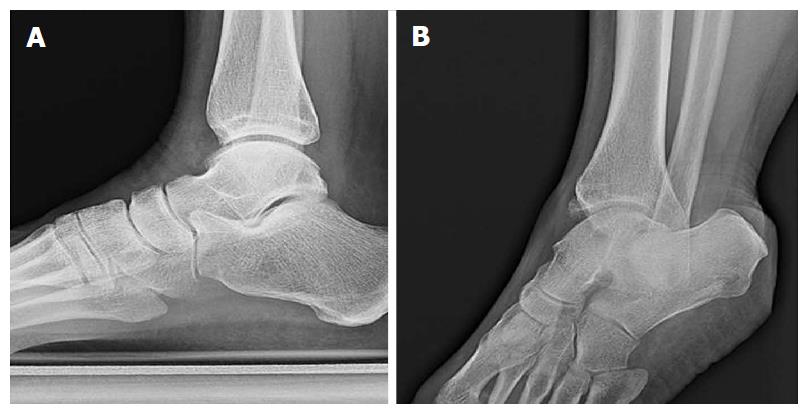 Football Injuries Of The Ankle A Review Of Injury Mechanisms