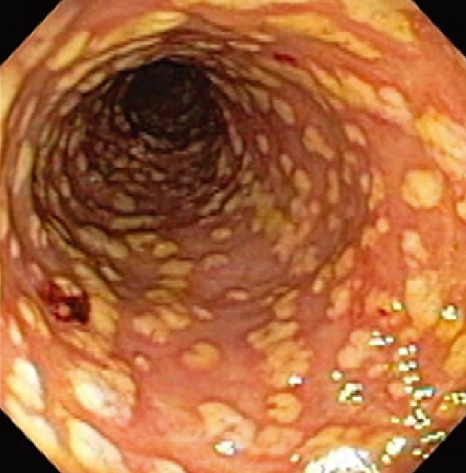 Severe Colitis Associated With Docetaxel Use A Report Of