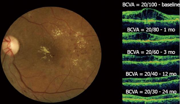 bevacizumab for the management of diabetic macular edema
