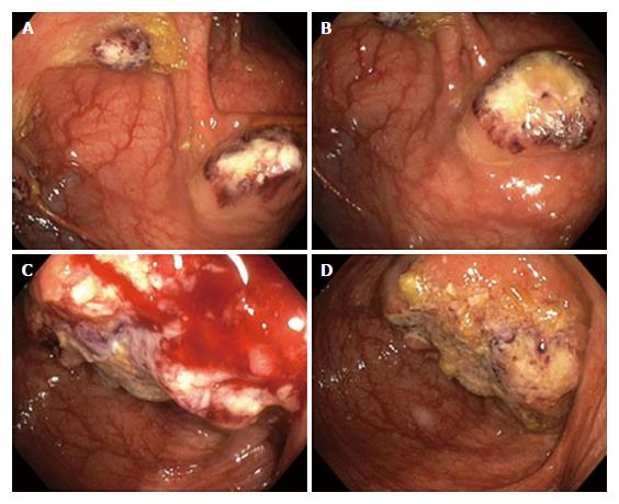 Diagnosis of colonic amebiasis and coexisting signet ring for Colonic mural thickening
