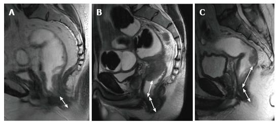 Magnetic Resonance Imaging For Diagnosis And Neoadjuvant Treatment Evaluation In Locally Advanced Rectal Cancer A Pictorial Review